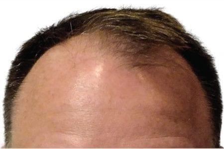 before procedure